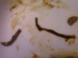 One of our customers passed these worms after a liver flush.
